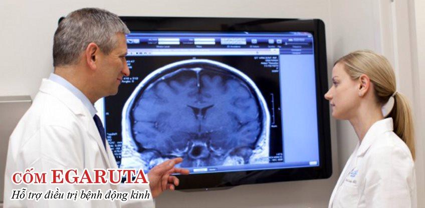 Bệnh động kinh có chữa khỏi hoàn toàn được không phụ thuộc vào nguyên nhân